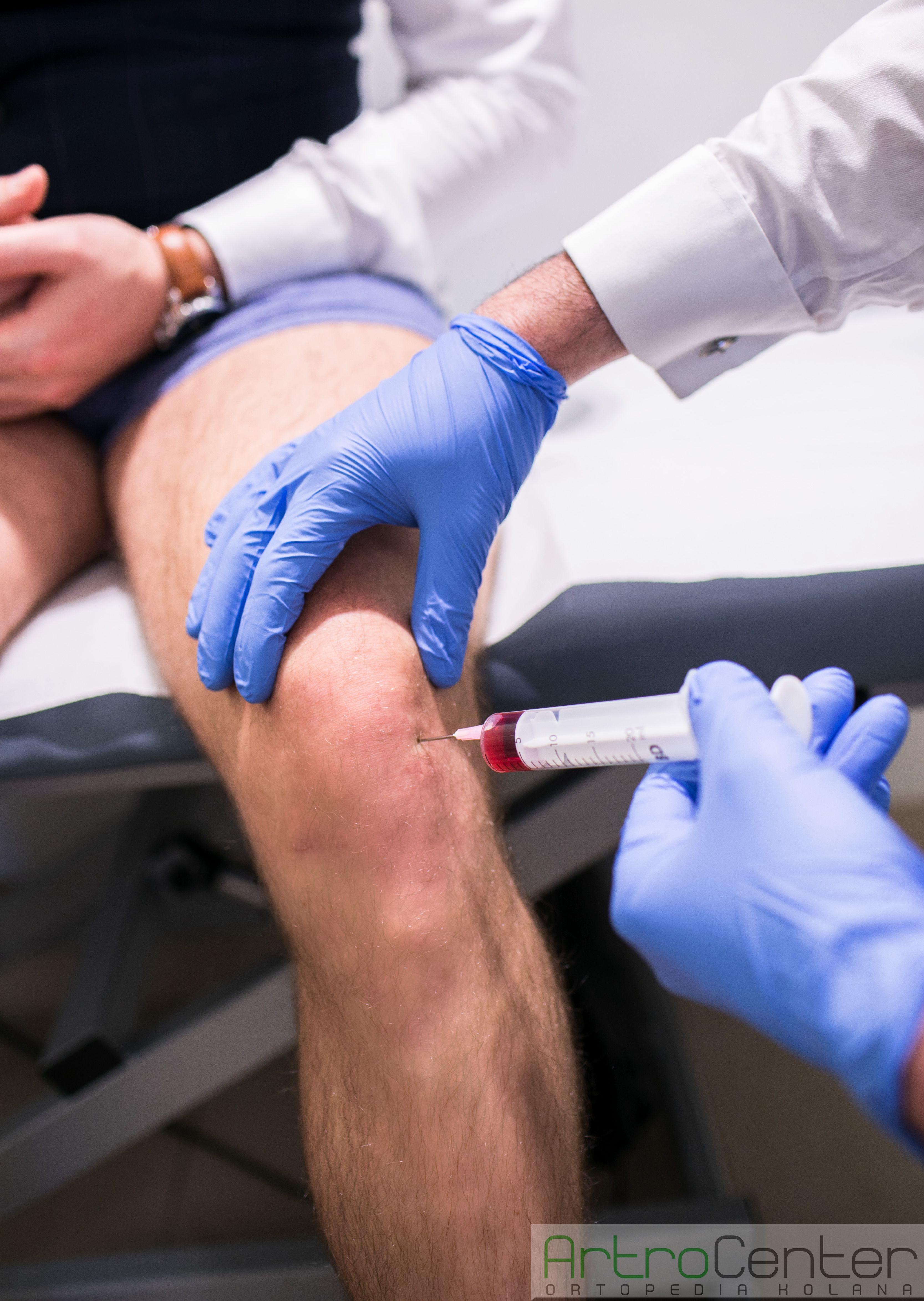 krwiak stawu kolanowego